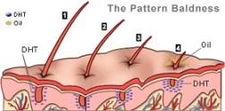 DHT - כיצד הדיהידרוטסטוסטרון מוביל להתקרחות